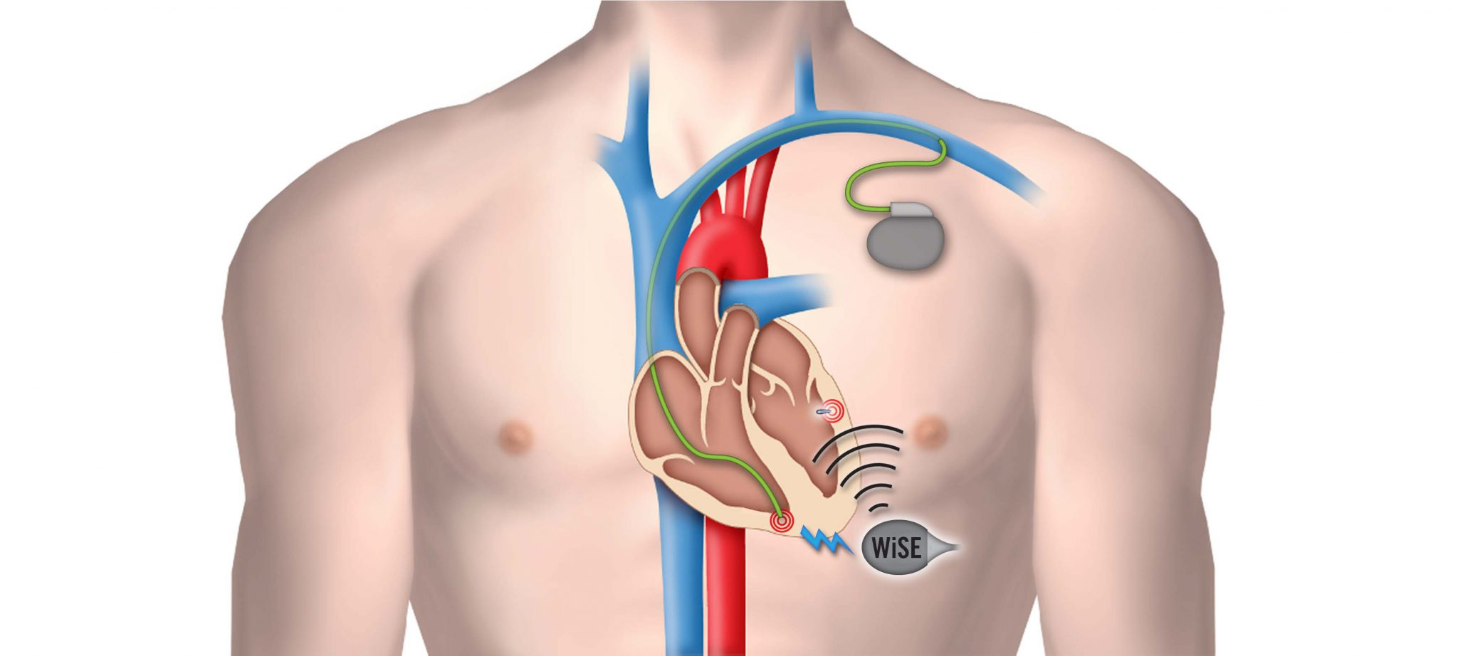 World's First Wireless Cardiac Pacing System CE Approval