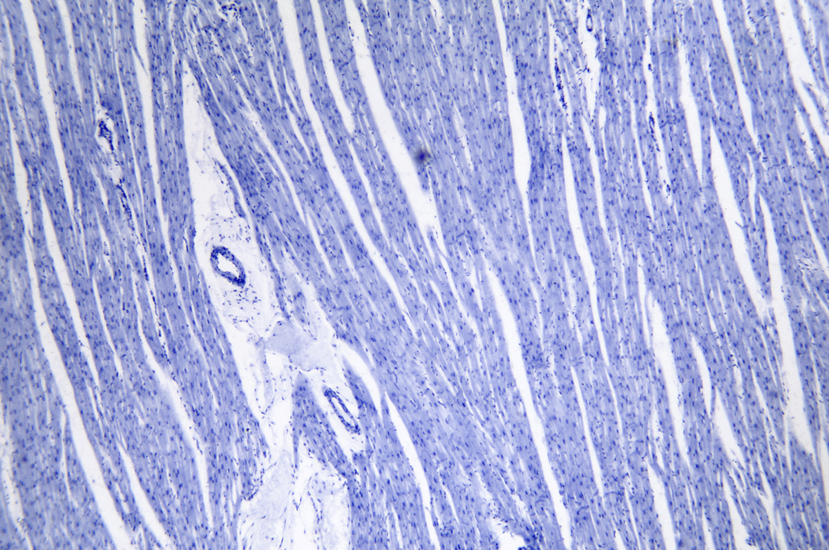 Stimulating Heart Muscle Cell Growth Breakthrough